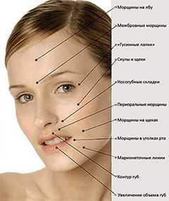 Лечение мимических и статических морщин