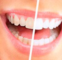 Обработка зубов системой Air Flow